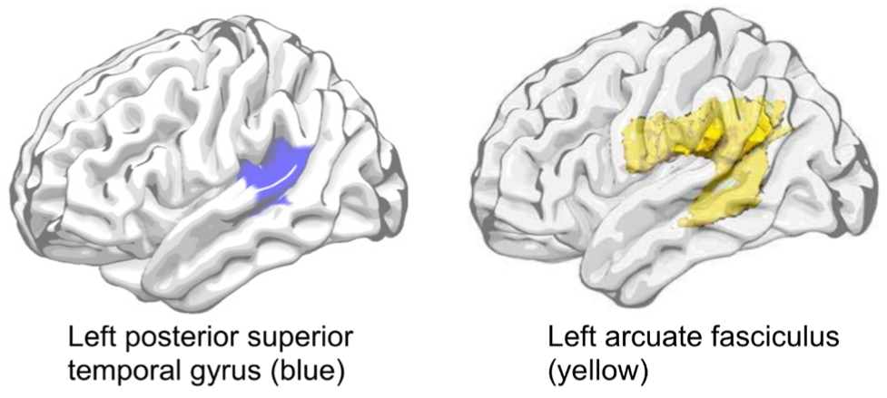 Predicting Aphasia Recovery: The Role of Brain Damage and SSRI Use